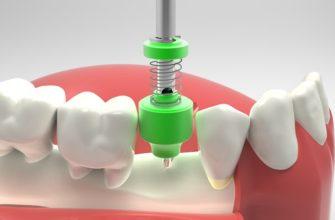Имплантация после удаления зуба сроки